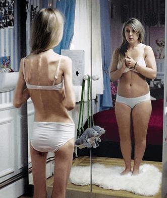 La anorexia provoca desnutrición